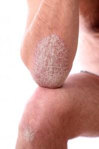 schuppenflechte - psoriasis an armen und beinen