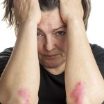 Woman with psoriasis