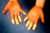Raynaud Syndrom wird auch Weißfingerkrankheit genannt