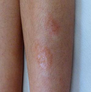 Hautprobleme unter den Knieschützern beim Hockey