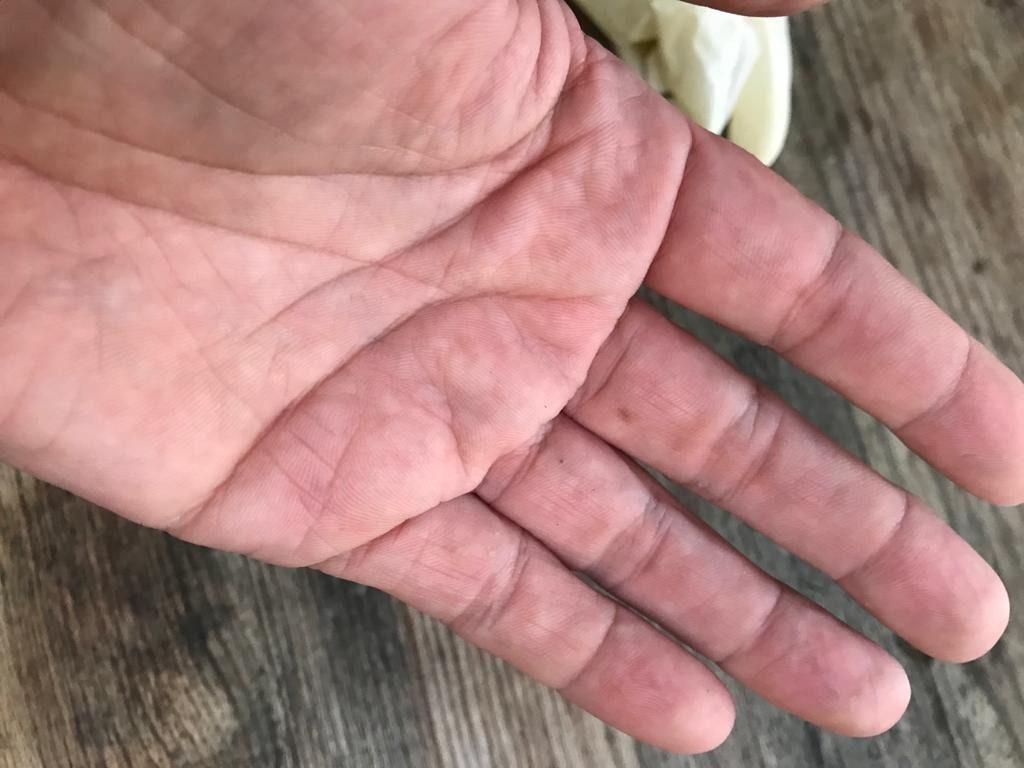 Aufgequollene Haut durch Schuthandschuhe